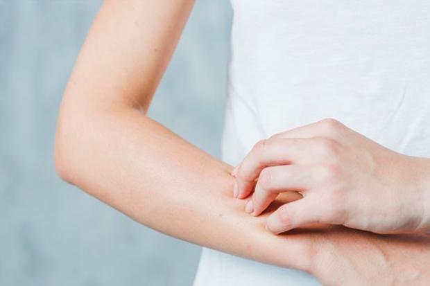 lupus-conheca-substancias-e-formas-naturais-de-combater-os-sintomas